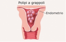 Polipi1